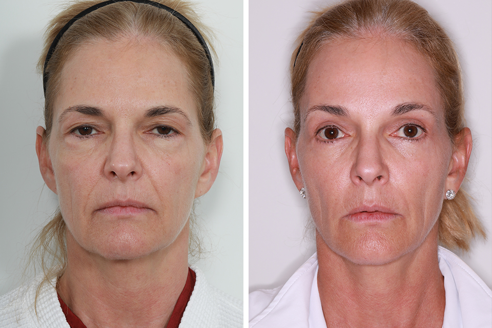 Get Eyebrow Lift Before And After  Background