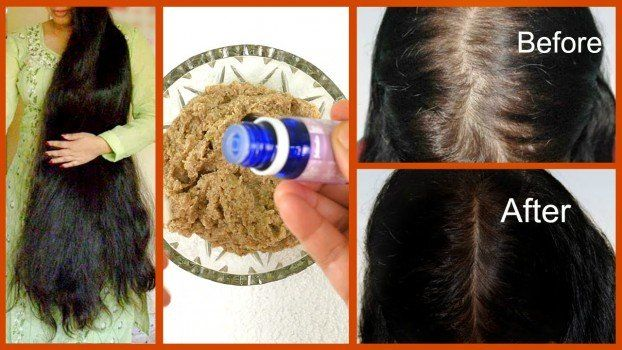 Amla Powder For Hair Growth Before And After