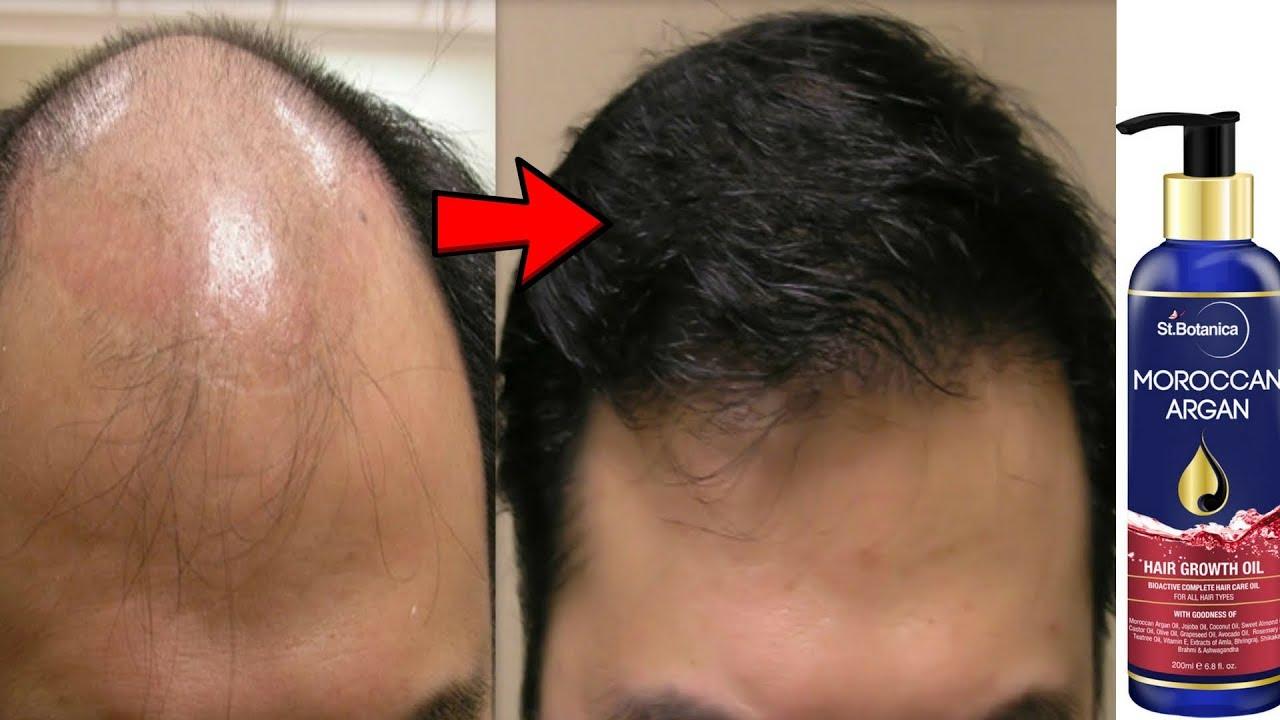 Argan Oil For Hair Growth Reviews
