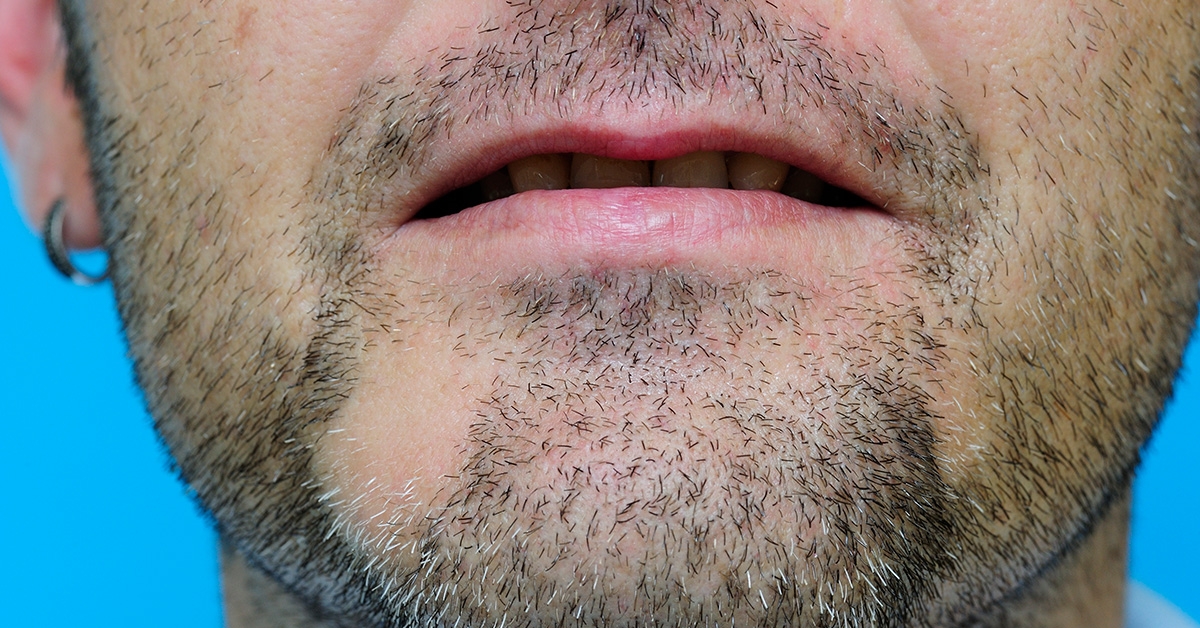 Beard Hair Loss In Patches