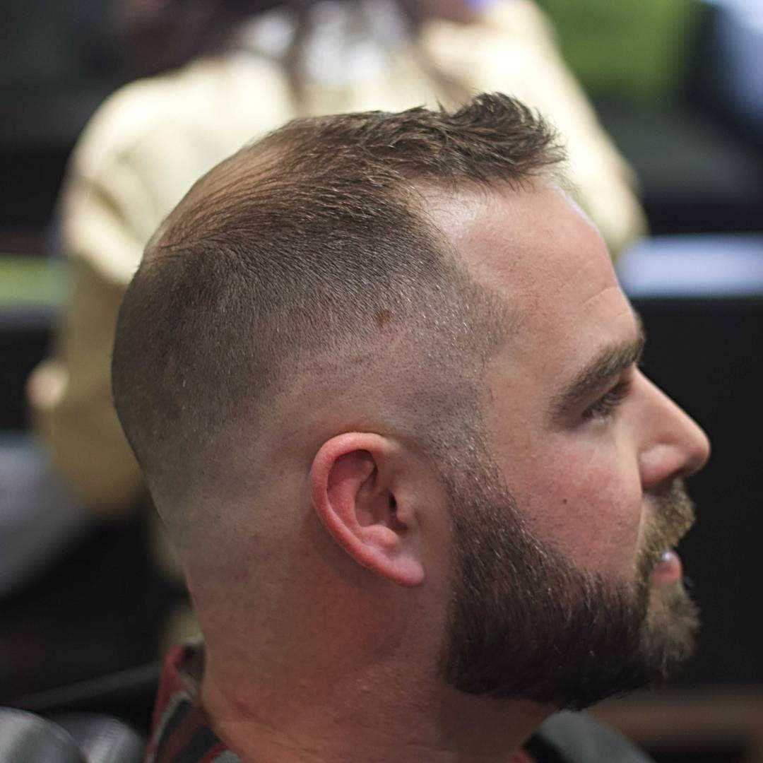 Best Haircut For Balding