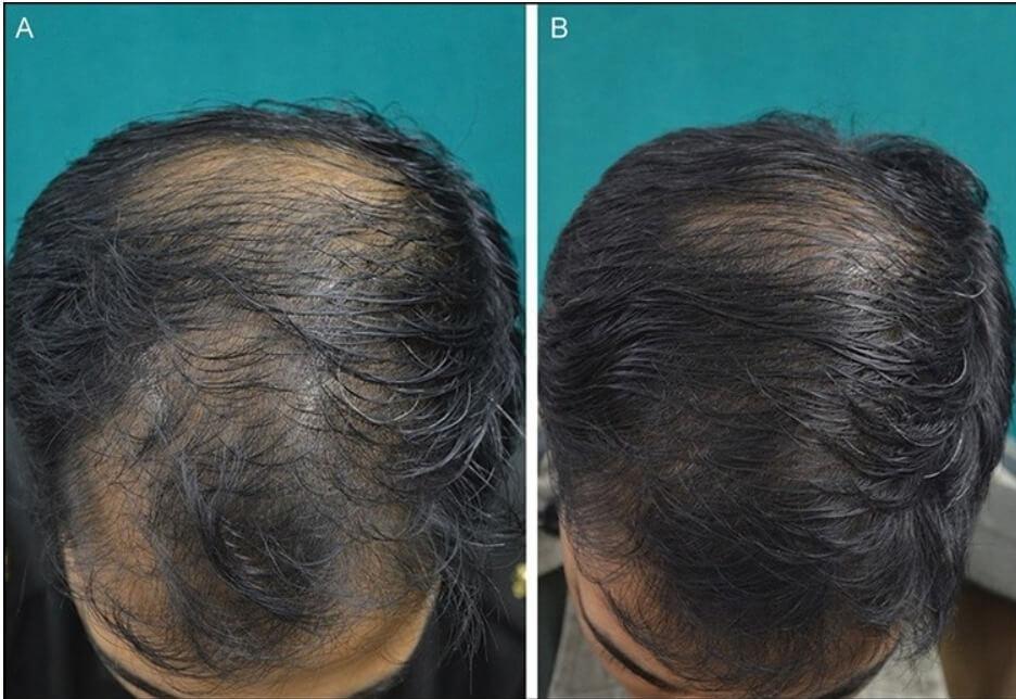 Botox For Hair Loss