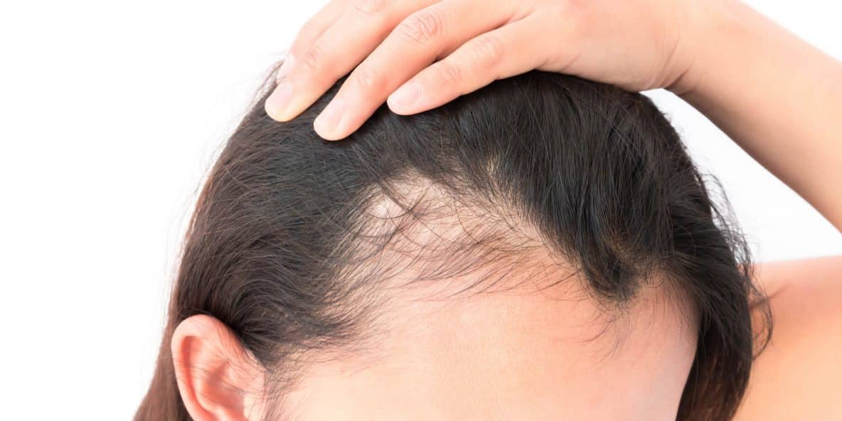 Can Adderall Cause Hair Loss