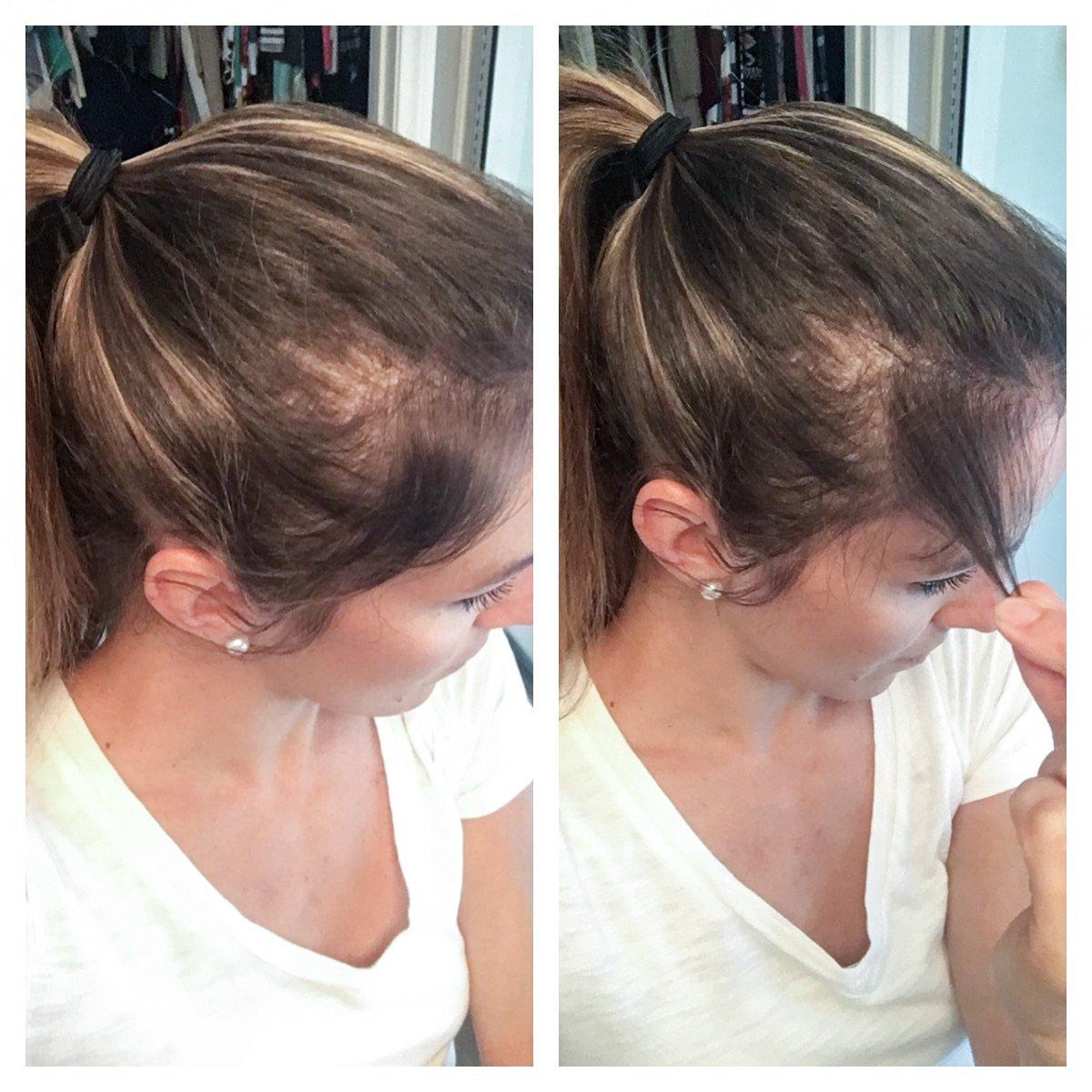 Collagen Supplements Hair Growth