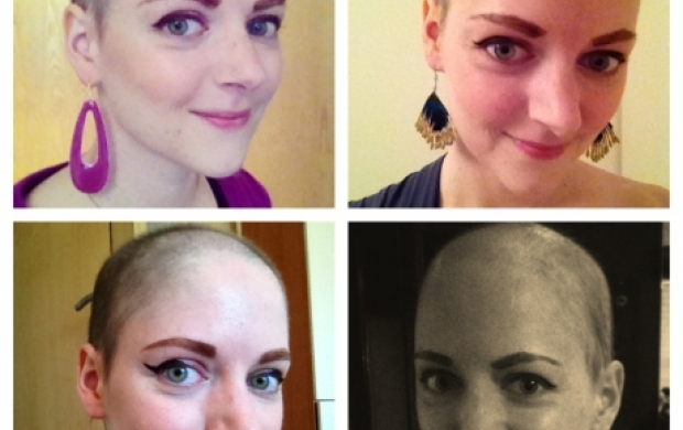 Do Your Eyebrows Grow Back After Chemo