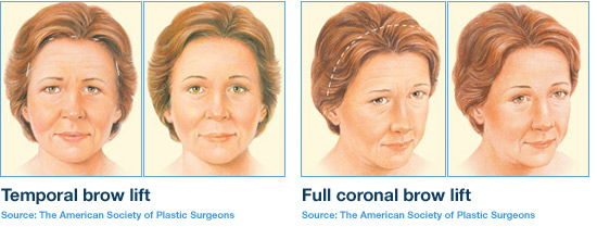 Eyebrow Lift Surgery Cost In India