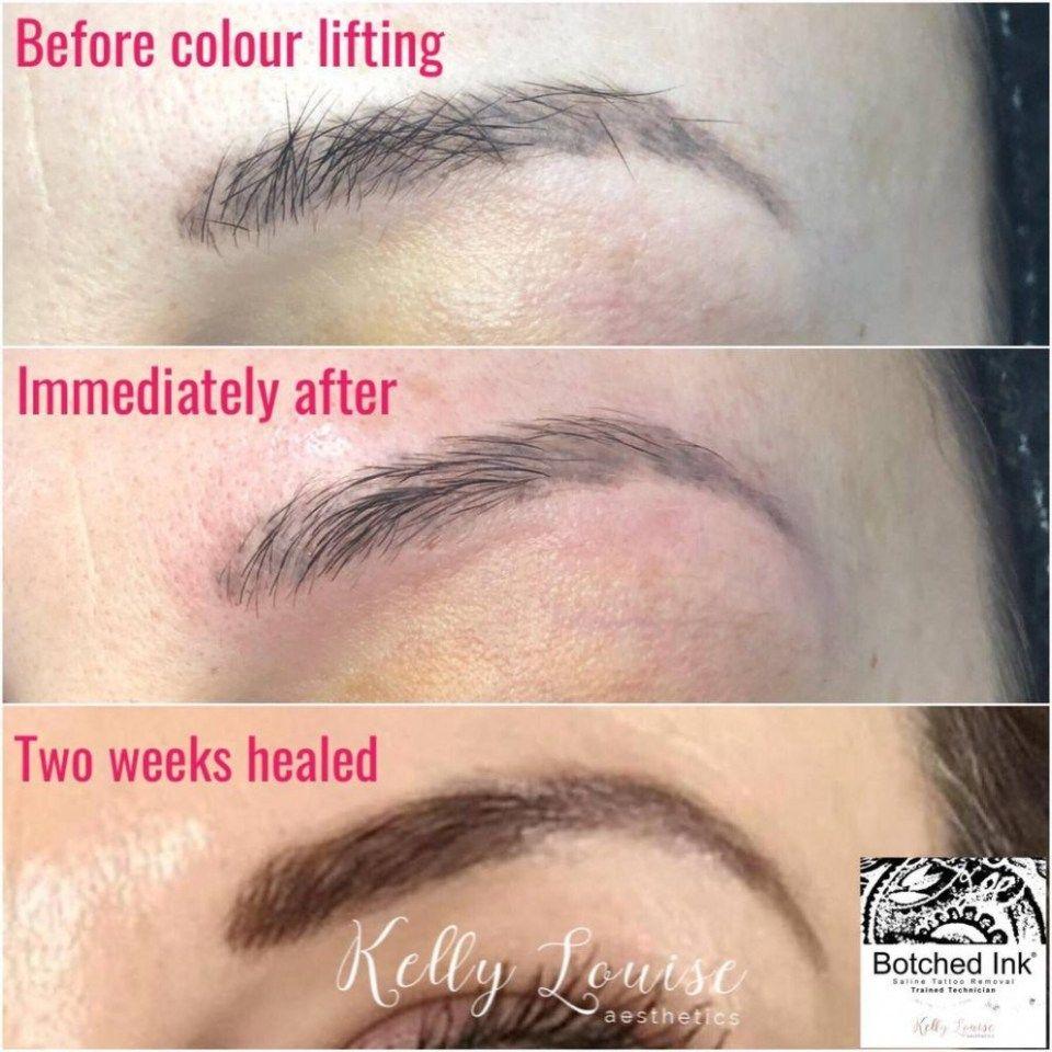 Saline Tattoo Removal Eyebrows