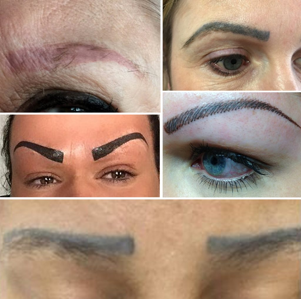11+ Permanent Eyebrow Tattoo Removal Before And After Background