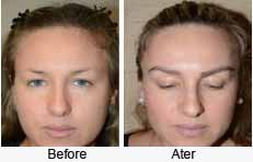 Get Eyebrow Hair Transplant Cost  Images