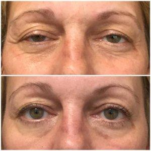 Get Eyebrow Lift With Botox Background