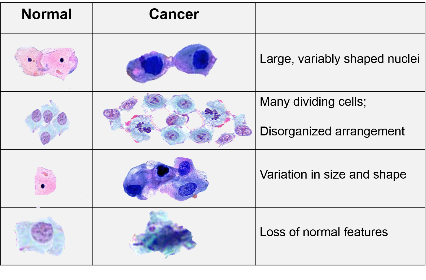 45+ Is Cancer And Tumor The Same  Pics
