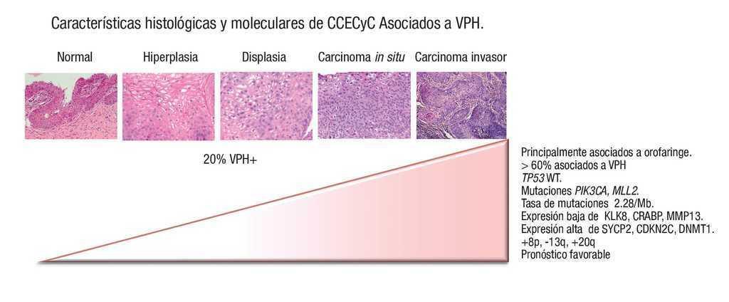 40+ Cancer Orofaringeo Y Virus Papiloma Humano  Gif